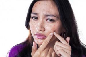 脂性肌ニキビを改善させる