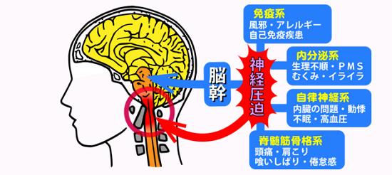 ニキビと脳幹の関係