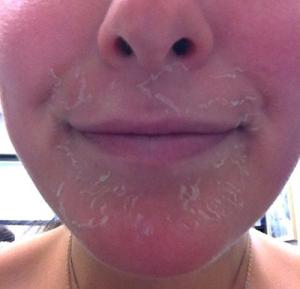 トレチノインの皮剥け