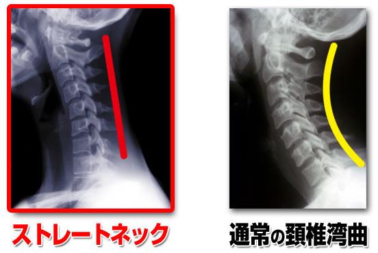 ニキビと脳幹の関係を説明する写真