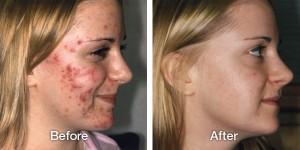 トレチノイン治療の写真