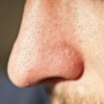 トレチノインは鼻の毛穴を治す天才かもしれない。
