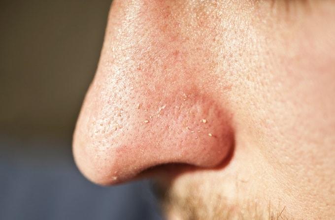 鼻の毛穴に有効なトレチノイン