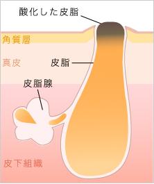 皮脂の酸化とニキビの関係