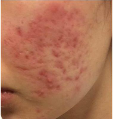 トレチノイン治療3日後の肌の様子