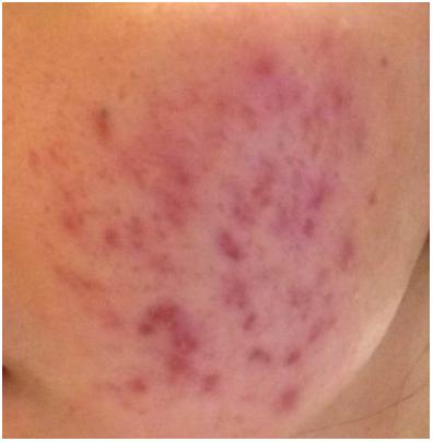 トレチノイン治療開始一週間後の肌の様子