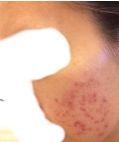 トレチノイン治療開始2週間目の肌の様子
