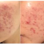 トレチノイン治療前後の肌の比較