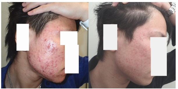 ベピオゲルで治らなかったニキビをアキュテインで治したケースの症例写真