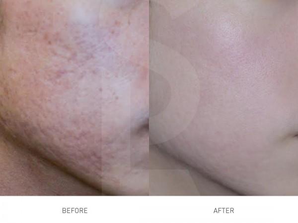 PRP治療でのクレーター肌改善