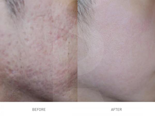 PRP治療でのクレーター肌改善2