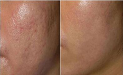 PRP治療でのクレーター肌改善例