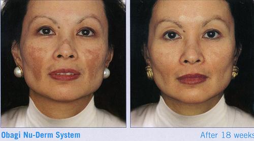 トレチノインとハイドロキノンの併用による茶色ニキビ跡の改善症例