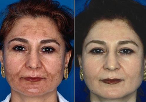 トレチノインとハイドロキノンによる茶色ニキビ跡の改善症例