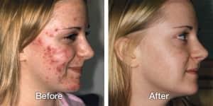 トレチノイン治療でひどいニキビが完治した例2