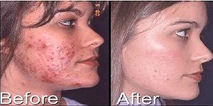 トレチノイン治療でひどいニキビが完治した例1