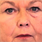 「第二の皮膚」が凸凹クレーター、シワ、たるみ隠し対策になるかも?
