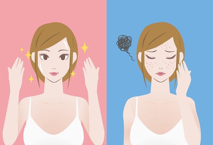 トレチノイン治療で悪化する前後の肌