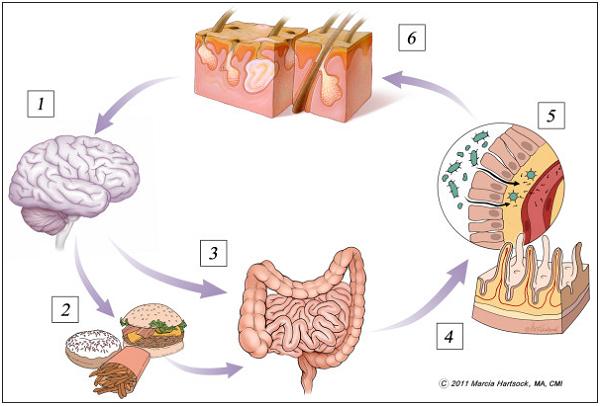 腸ー脳ー皮膚相関