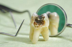 虫歯とニキビの関係