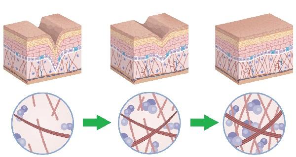 トレチノインで真皮再生し、クレーターを改善させる図