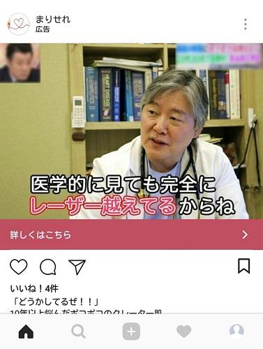 ニキビケアのinstagramステマ広告