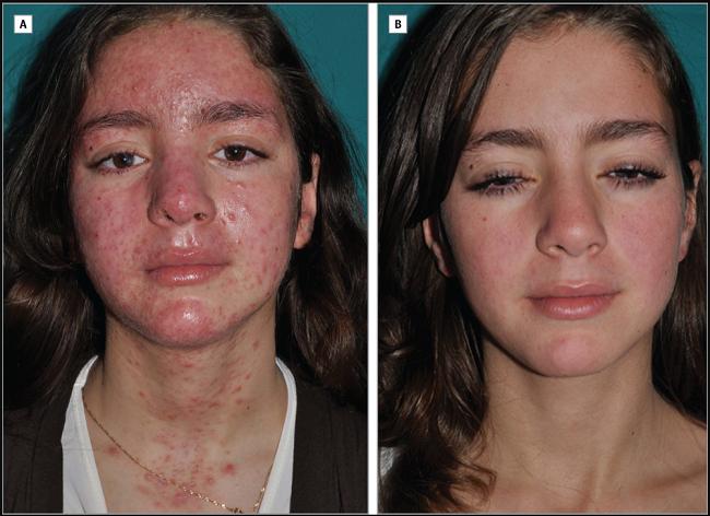 イベルメクチンでニキビダニの脂性肌が改善した例