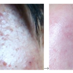 プロリンでの脂性肌の改善