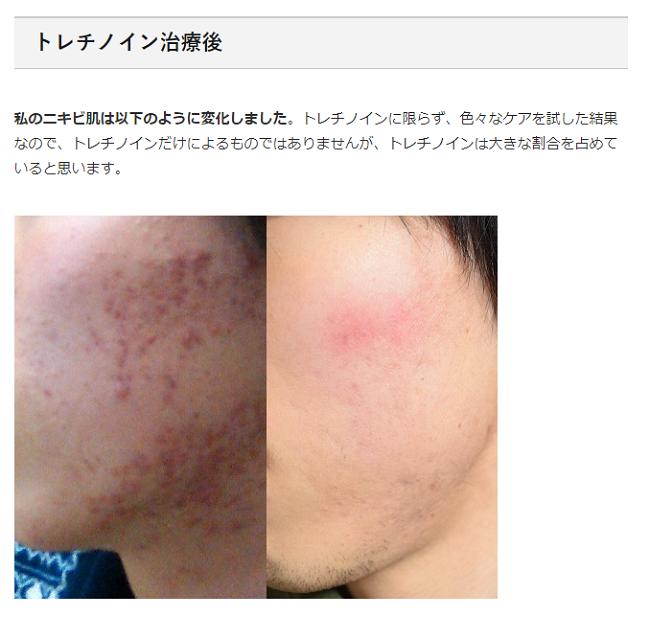 重症ニキビ改善ブログで使っているオリジナルの画像