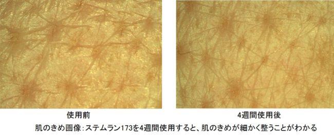 ステムラン173による肌のきめの改善具合